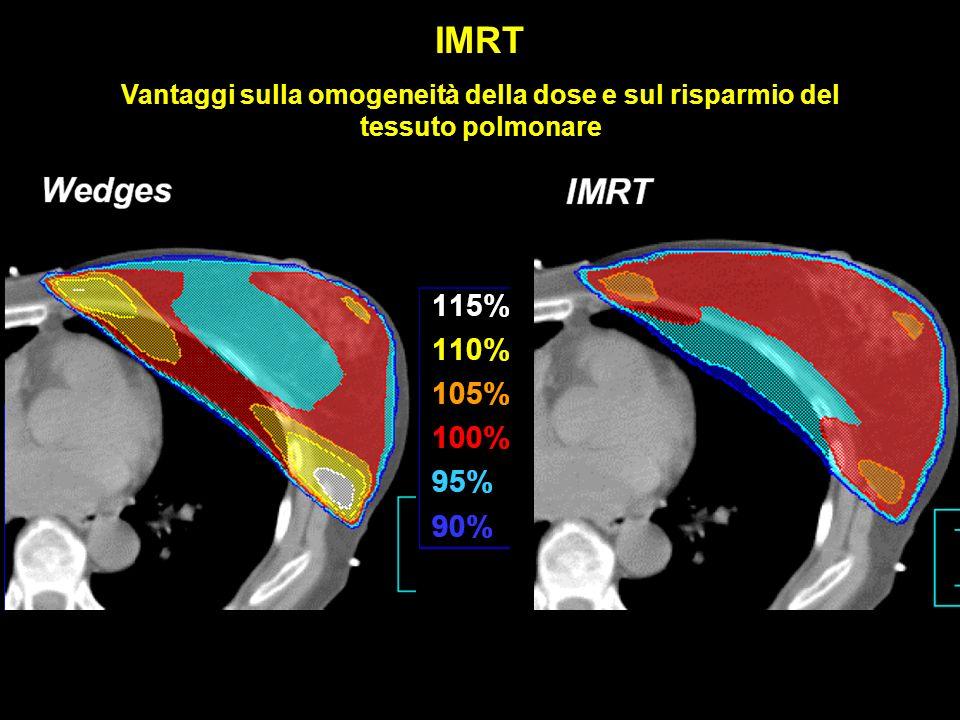 IMRT Vantaggi sulla omogeneità della dose e sul risparmio del tessuto polmonare
