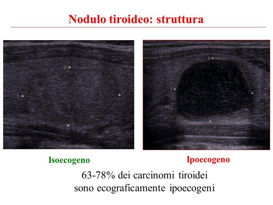Nodulo tiroideo: struttura