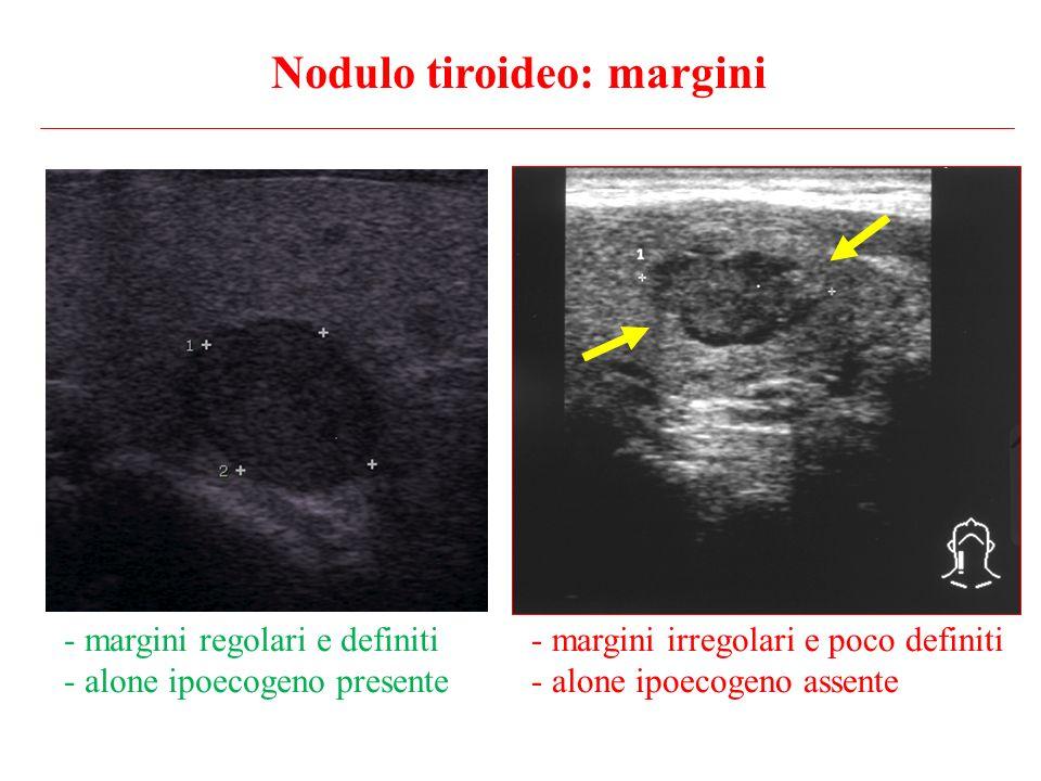 Nodulo tiroideo: margini