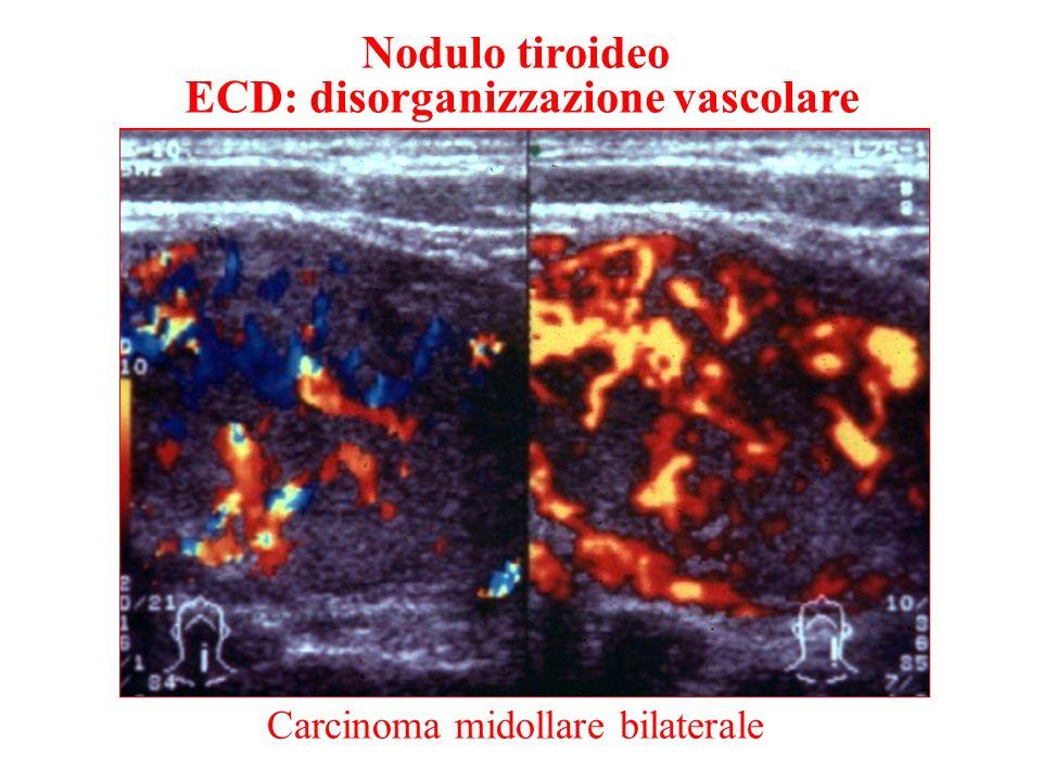 ECD: disorganizzazione vascolare