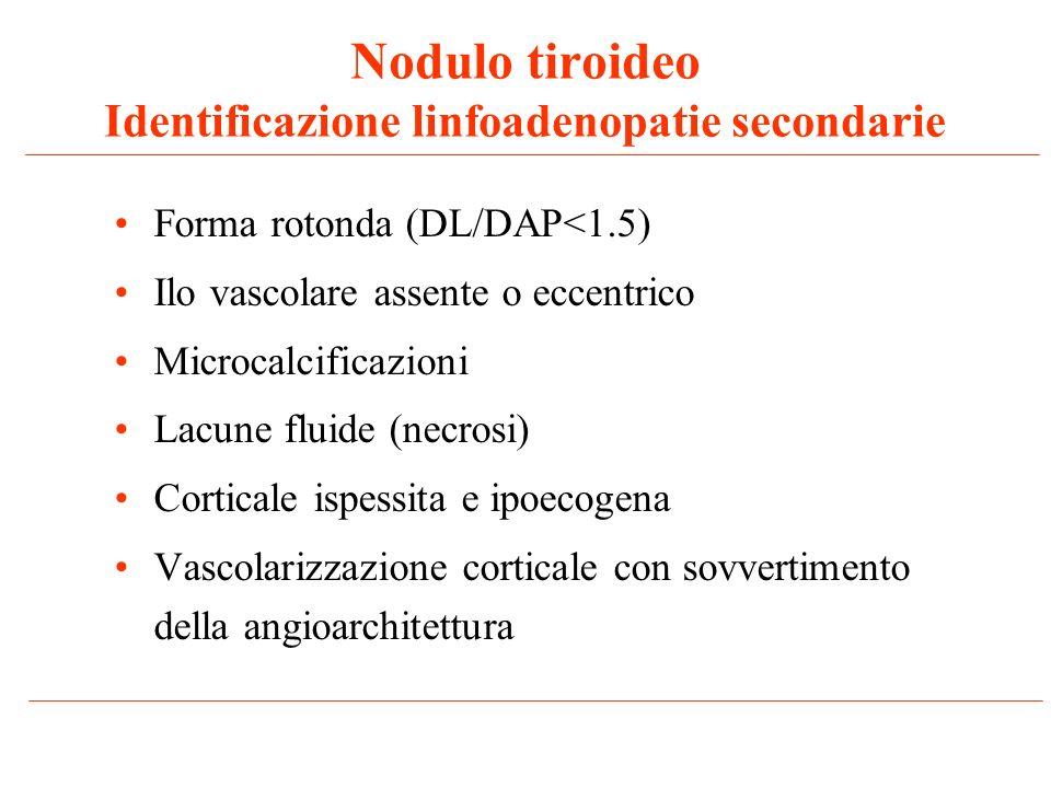 Nodulo tiroideo Identificazione linfoadenopatie secondarie