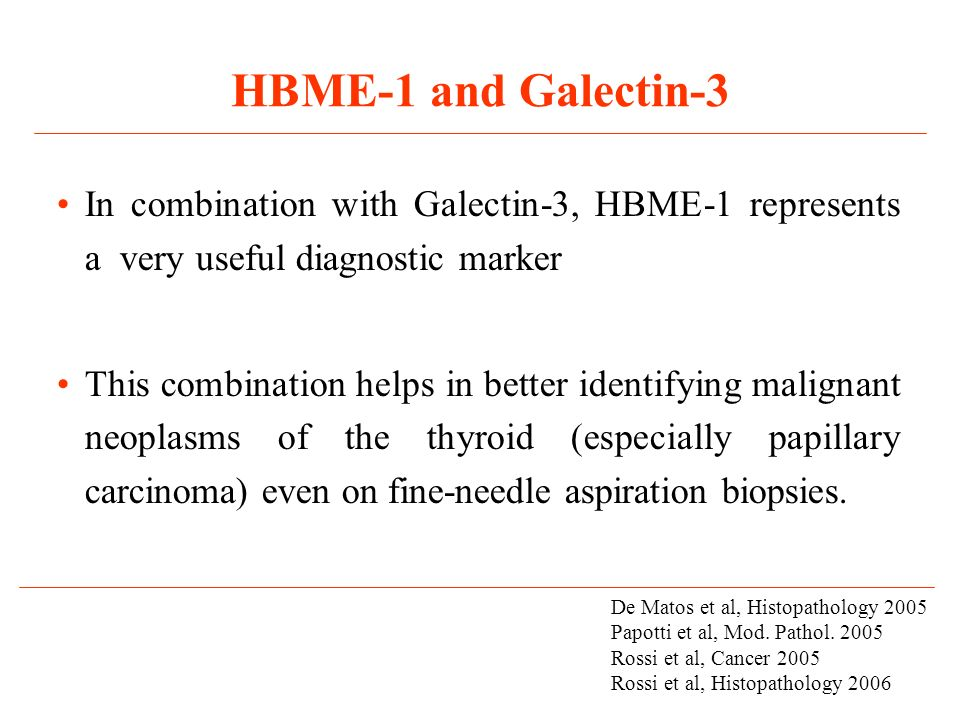 HBME-1 and Galectin-3 In combination with Galectin-3, HBME-1 represents a very useful diagnostic marker.