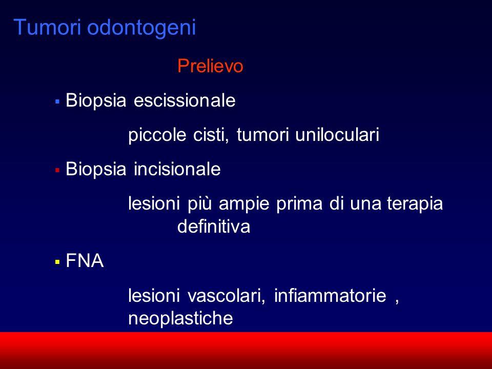Tumori odontogeni Prelievo Biopsia escissionale