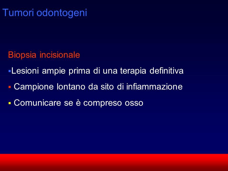 Tumori odontogeni Biopsia incisionale