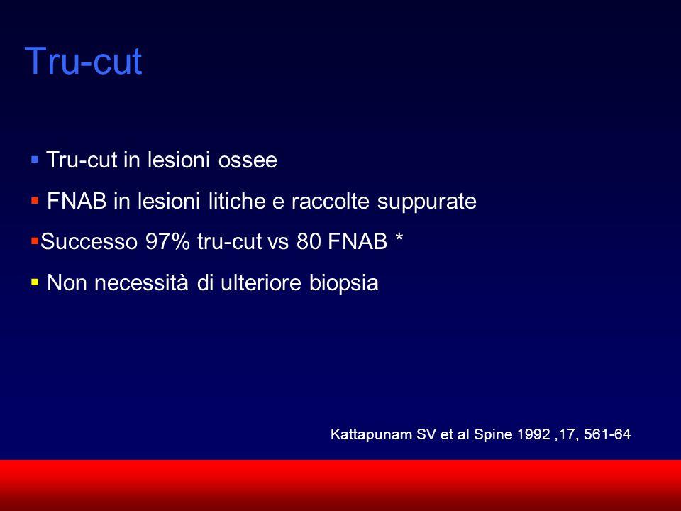 Tru-cut Tru-cut in lesioni ossee