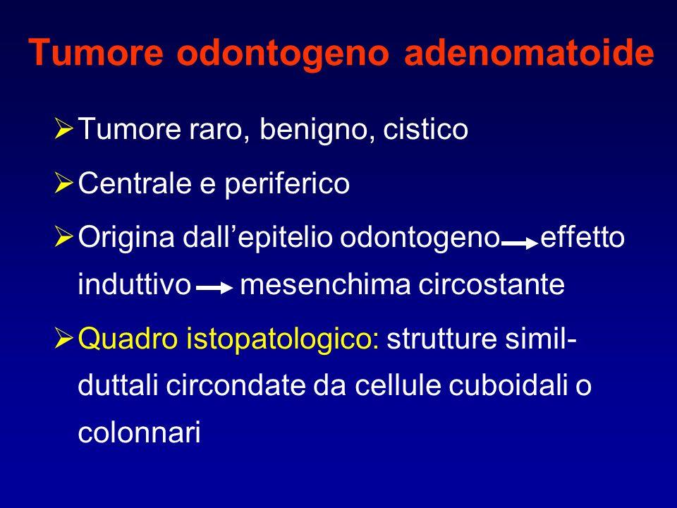 Tumore odontogeno adenomatoide