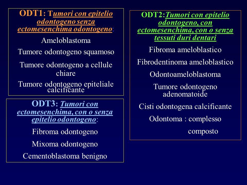 ODT1: Tumori con epitelio odontogeno senza ectomesenchima odontogeno:
