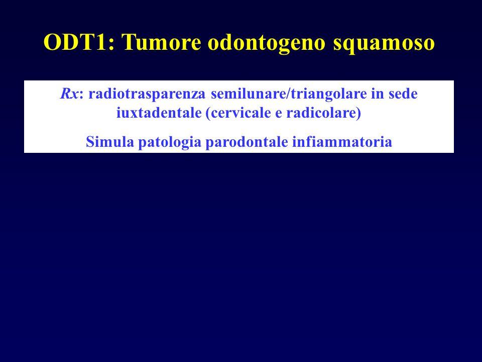 ODT1: Tumore odontogeno squamoso