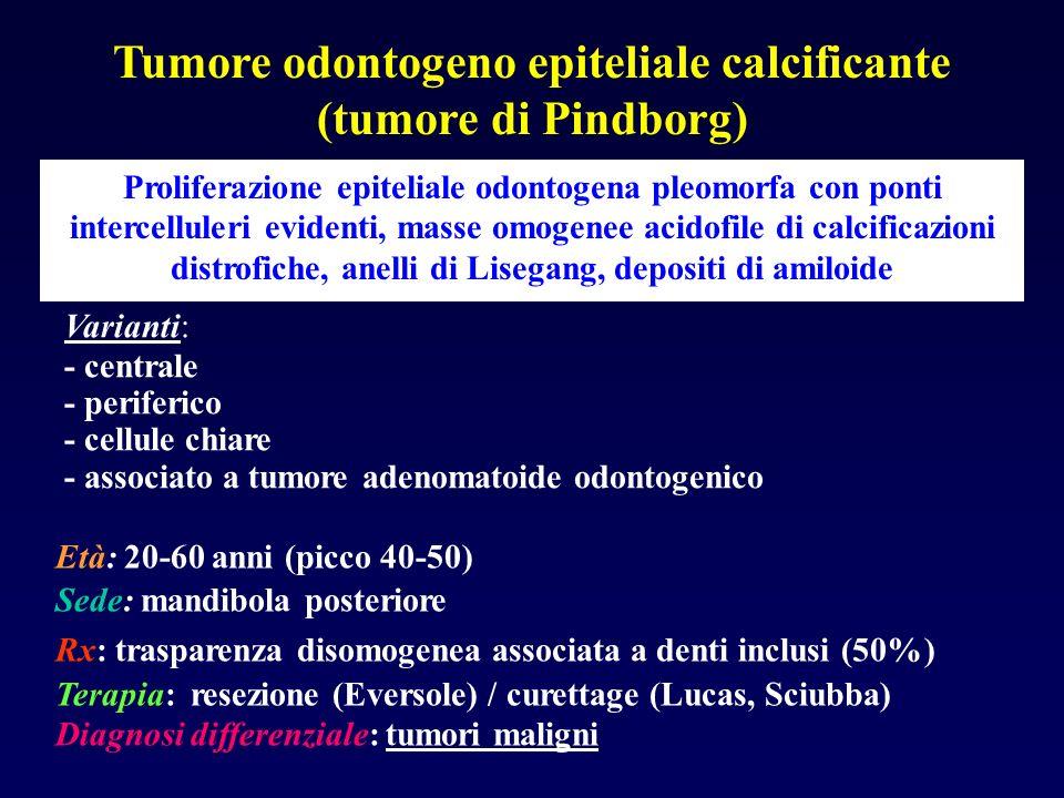 Tumore odontogeno epiteliale calcificante (tumore di Pindborg)