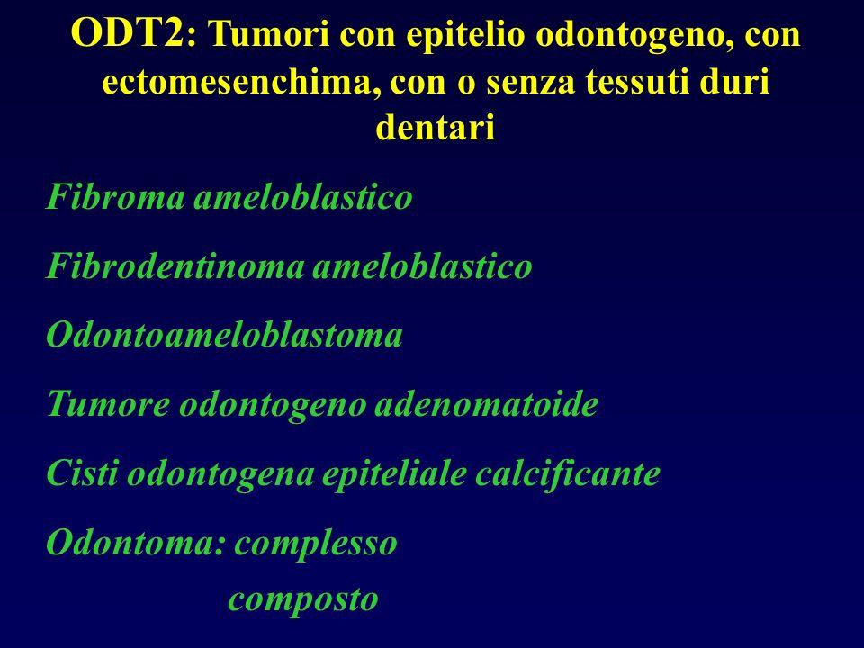 ODT2: Tumori con epitelio odontogeno, con ectomesenchima, con o senza tessuti duri dentari