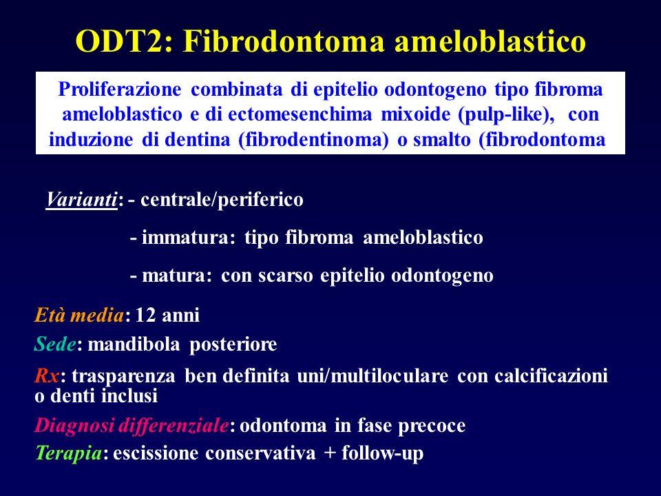 ODT2: Fibrodontoma ameloblastico