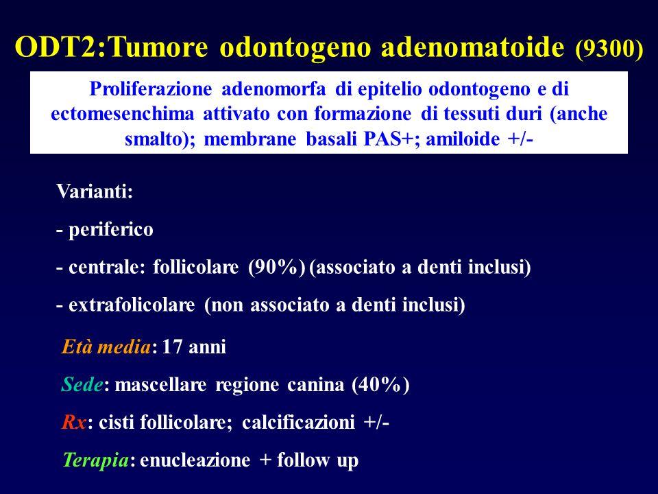 ODT2:Tumore odontogeno adenomatoide (9300)