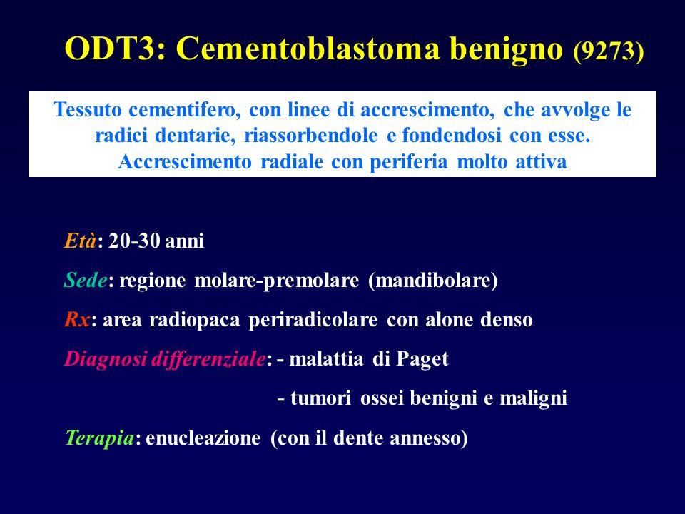 ODT3: Cementoblastoma benigno (9273)