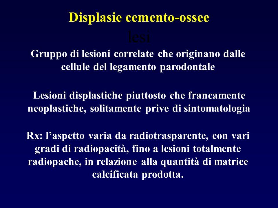 Displasie cemento-ossee