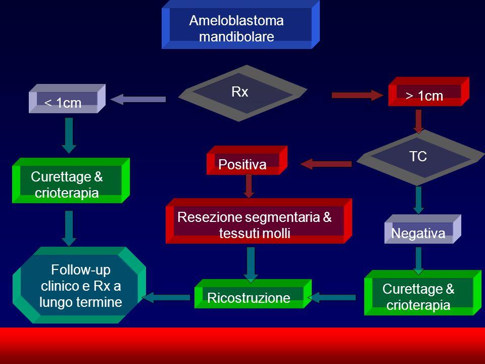 Ameloblastoma mandibolare