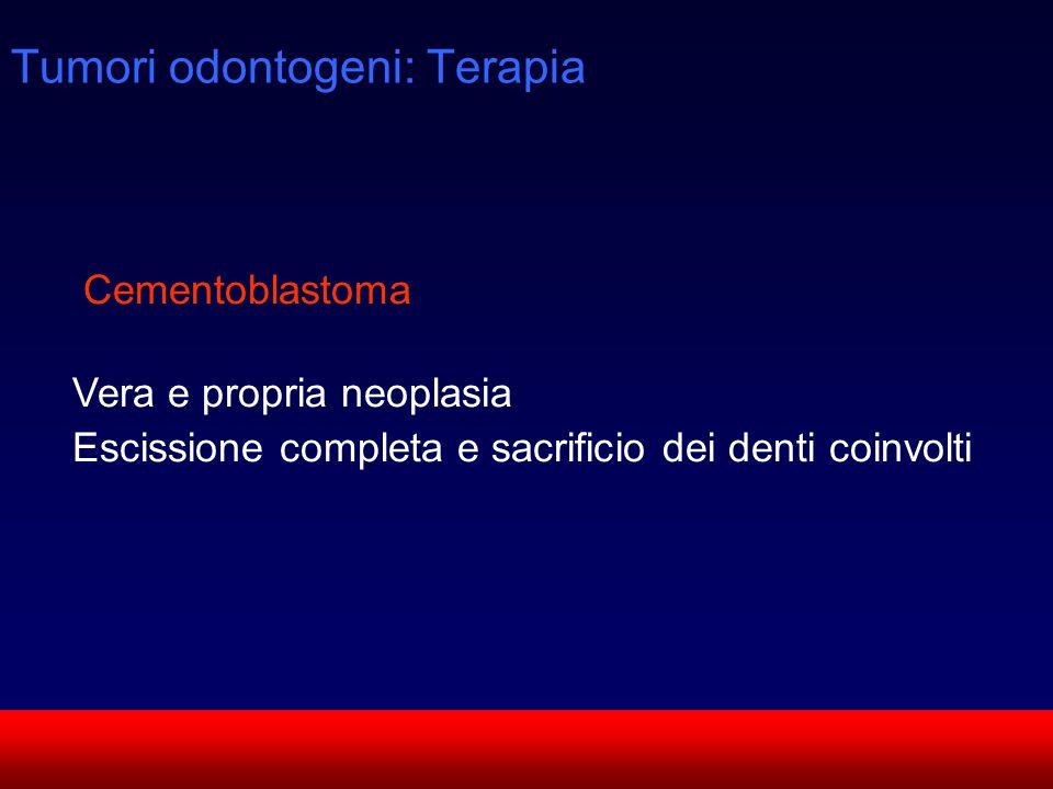 Tumori odontogeni: Terapia