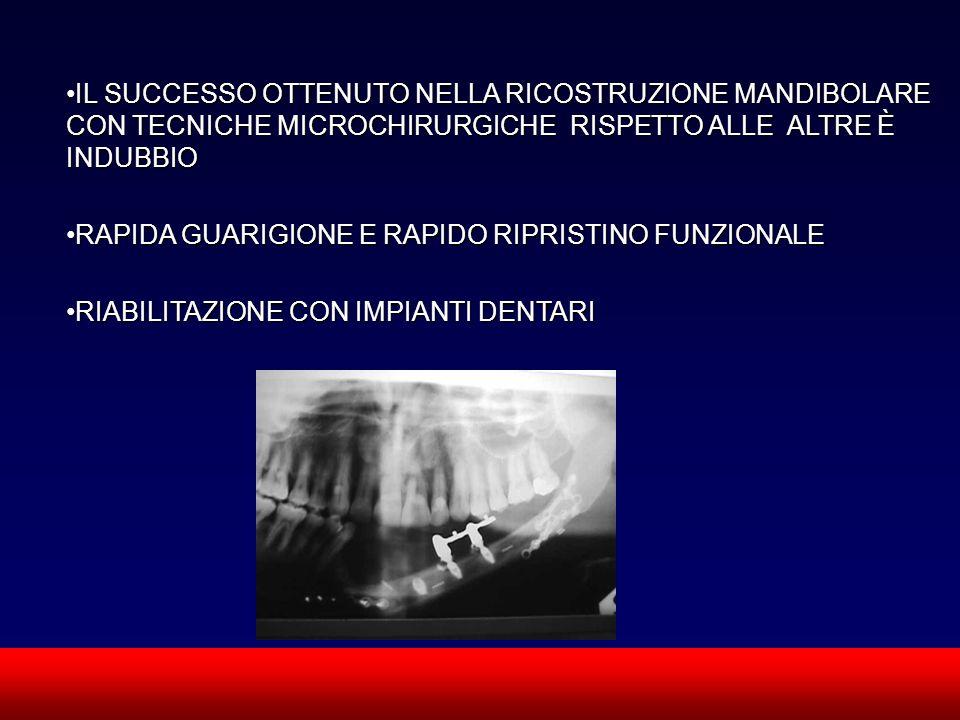 IL SUCCESSO OTTENUTO NELLA RICOSTRUZIONE MANDIBOLARE CON TECNICHE MICROCHIRURGICHE RISPETTO ALLE ALTRE È INDUBBIO