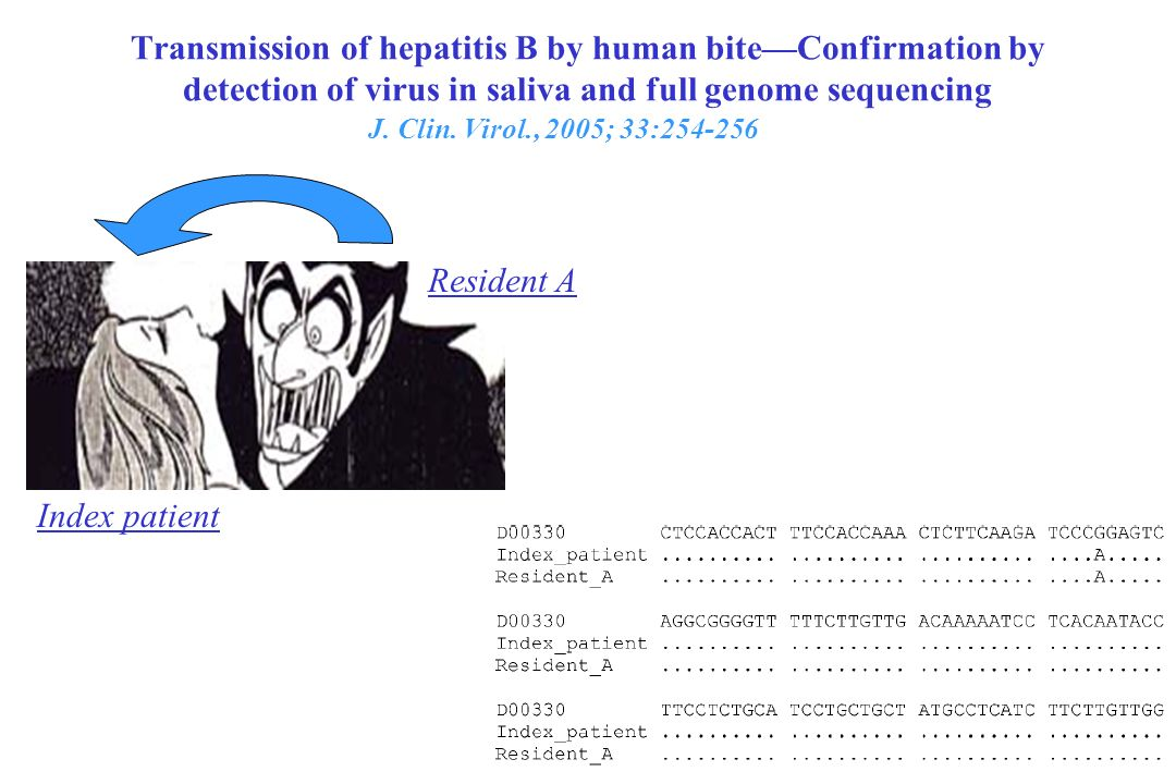 Transmission of hepatitis B by human bite—Confirmation by detection of virus in saliva and full genome sequencing