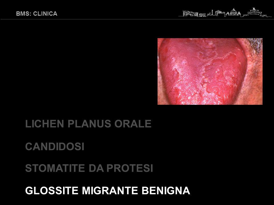 GLOSSITE MIGRANTE BENIGNA