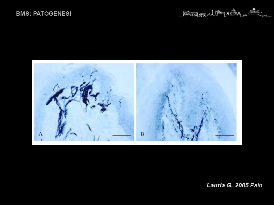 BMS: PATOGENESI Lauria G, 2005 Pain