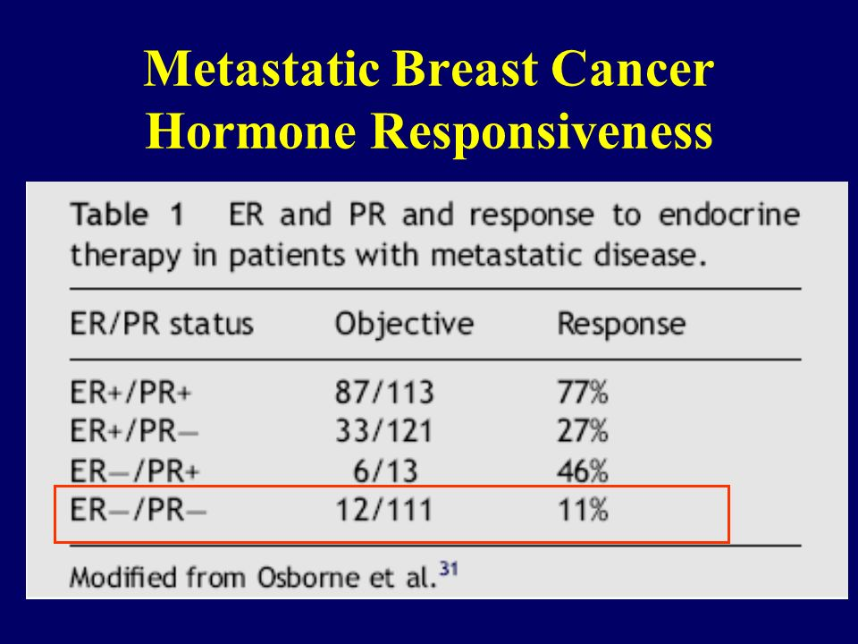 Metastatic Breast Cancer Hormone Responsiveness