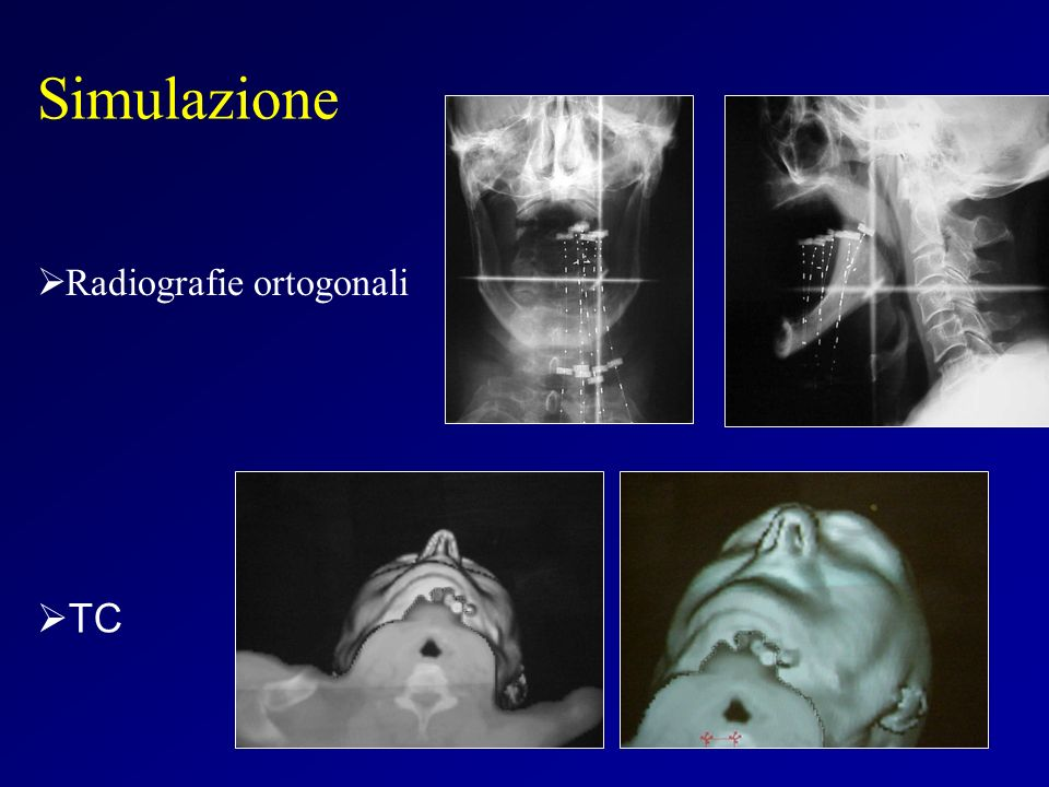 Simulazione Radiografie ortogonali TC
