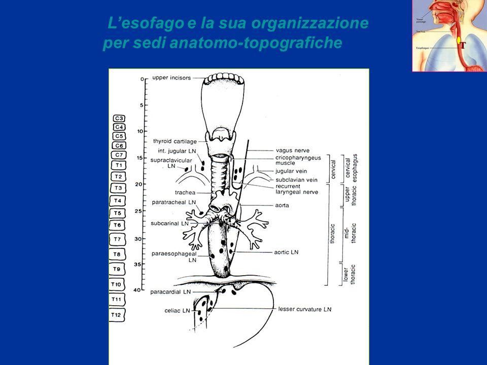 L'esofago e la sua organizzazione per sedi anatomo-topografiche