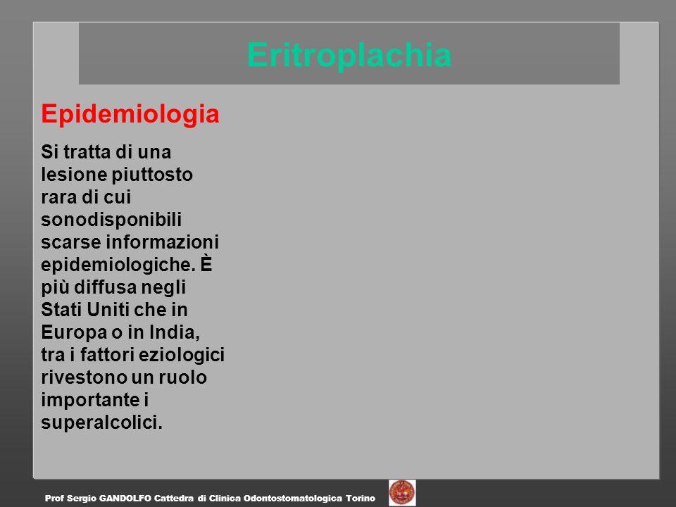 Eritroplachia Epidemiologia