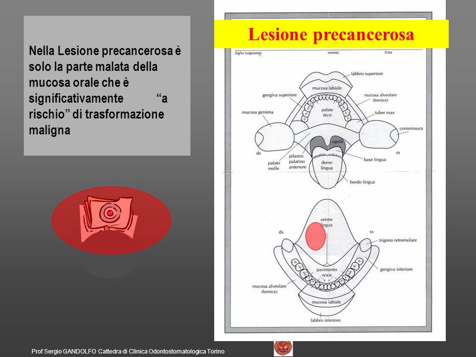 Nella Lesione precancerosa è solo la parte malata della mucosa orale che è significativamente a rischio di trasformazione maligna