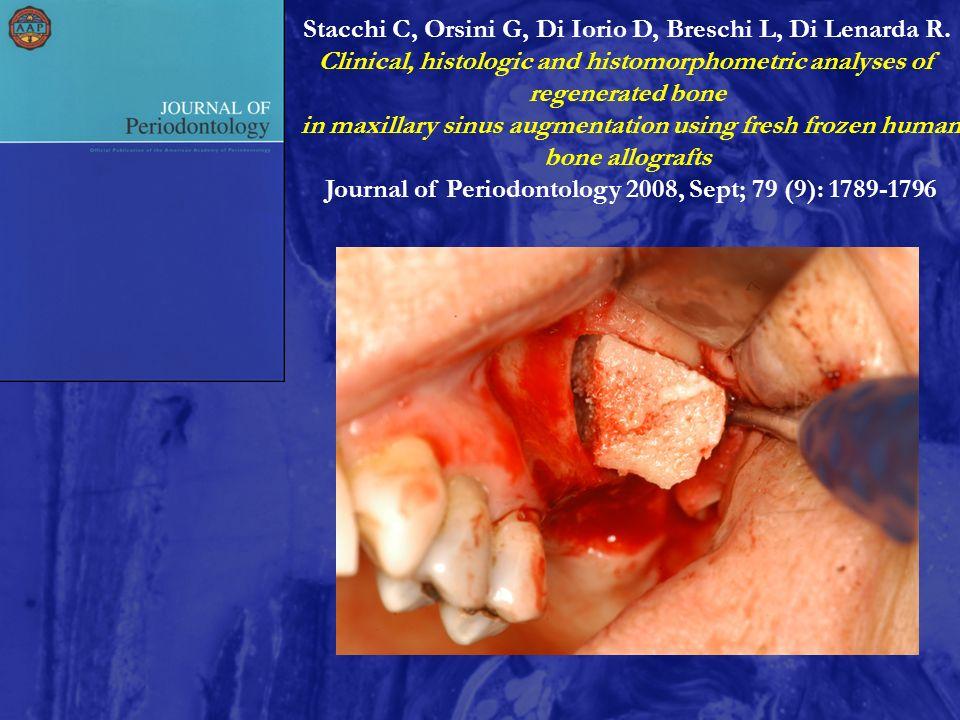 Stacchi C, Orsini G, Di Iorio D, Breschi L, Di Lenarda R.