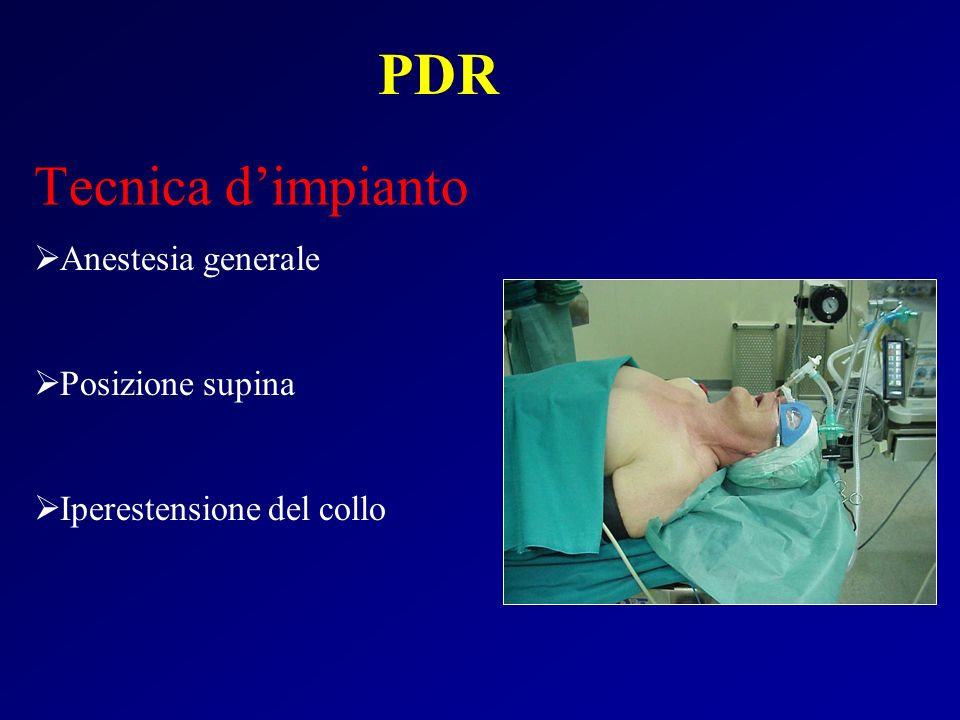 PDR Tecnica d'impianto Anestesia generale Posizione supina