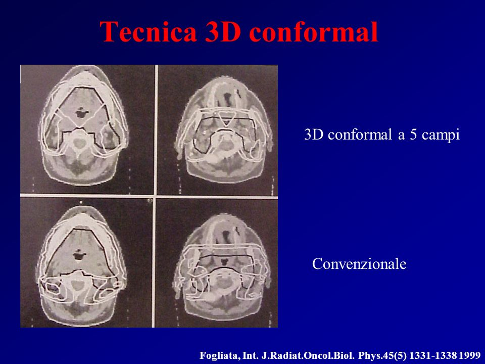 Tecnica 3D conformal 3D conformal a 5 campi Convenzionale