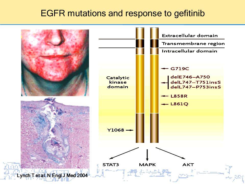 EGFR mutations and response to gefitinib