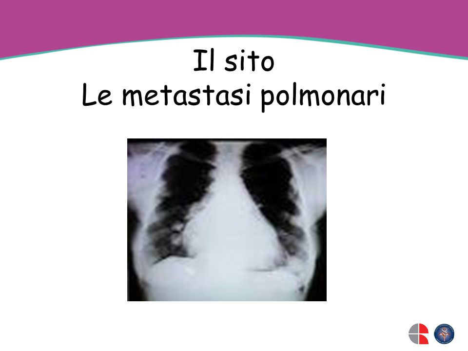 Il sito Le metastasi polmonari