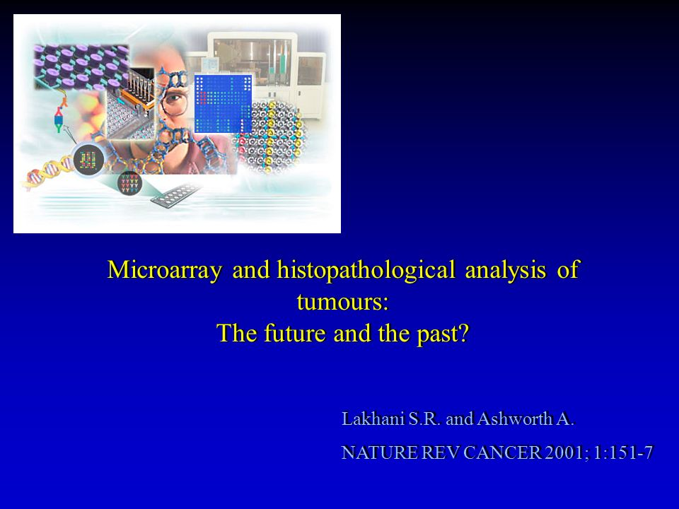 Microarray and histopathological analysis of tumours: