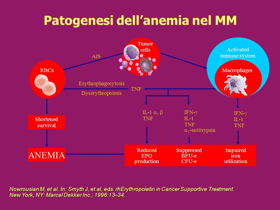 Patogenesi dell'anemia nel MM