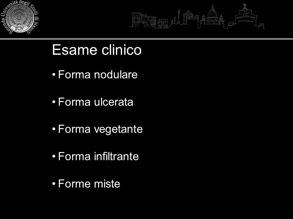 Esame clinico Forma nodulare Forma ulcerata Forma vegetante