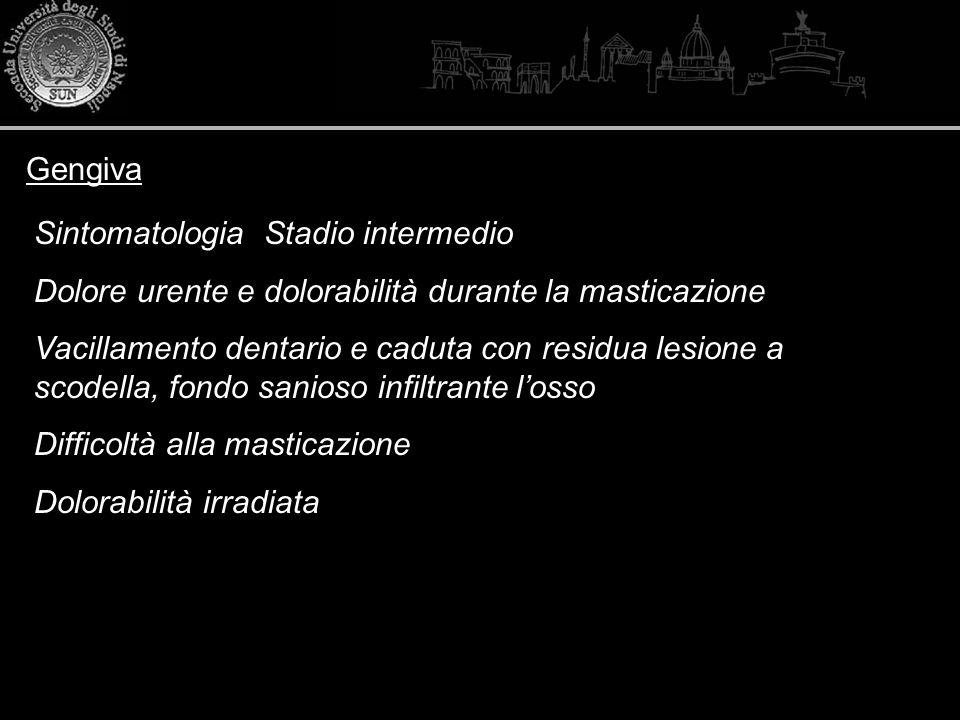 Gengiva Sintomatologia Stadio intermedio. Dolore urente e dolorabilità durante la masticazione.