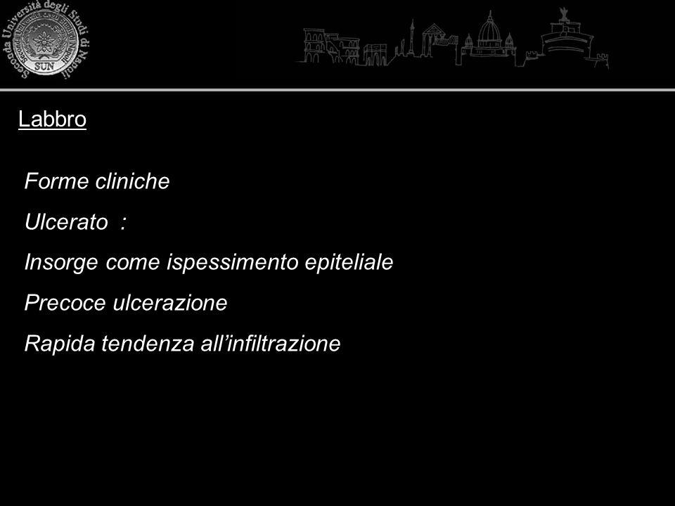 Labbro Forme cliniche. Ulcerato : Insorge come ispessimento epiteliale.