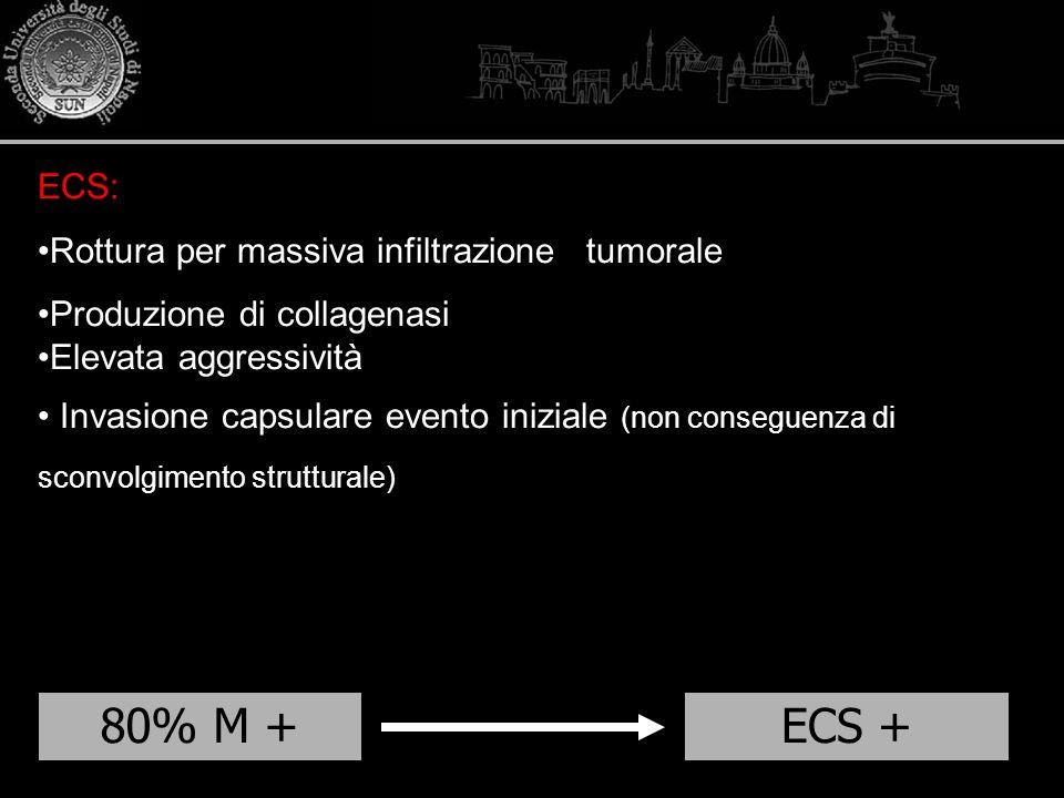 80% M + ECS + ECS: Rottura per massiva infiltrazione tumorale