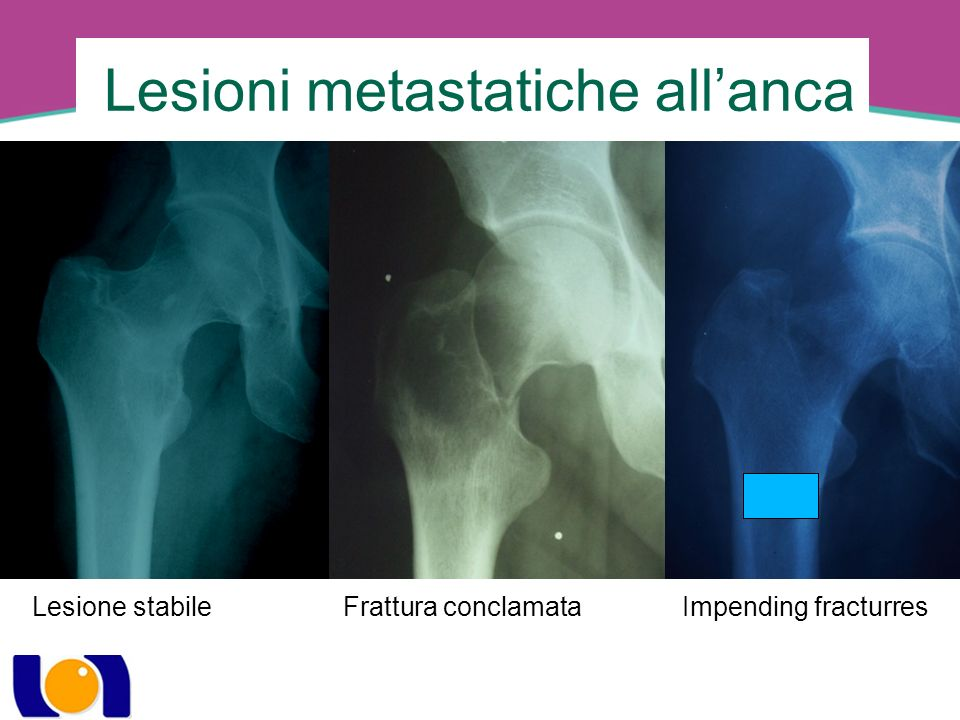 Lesioni metastatiche all'anca