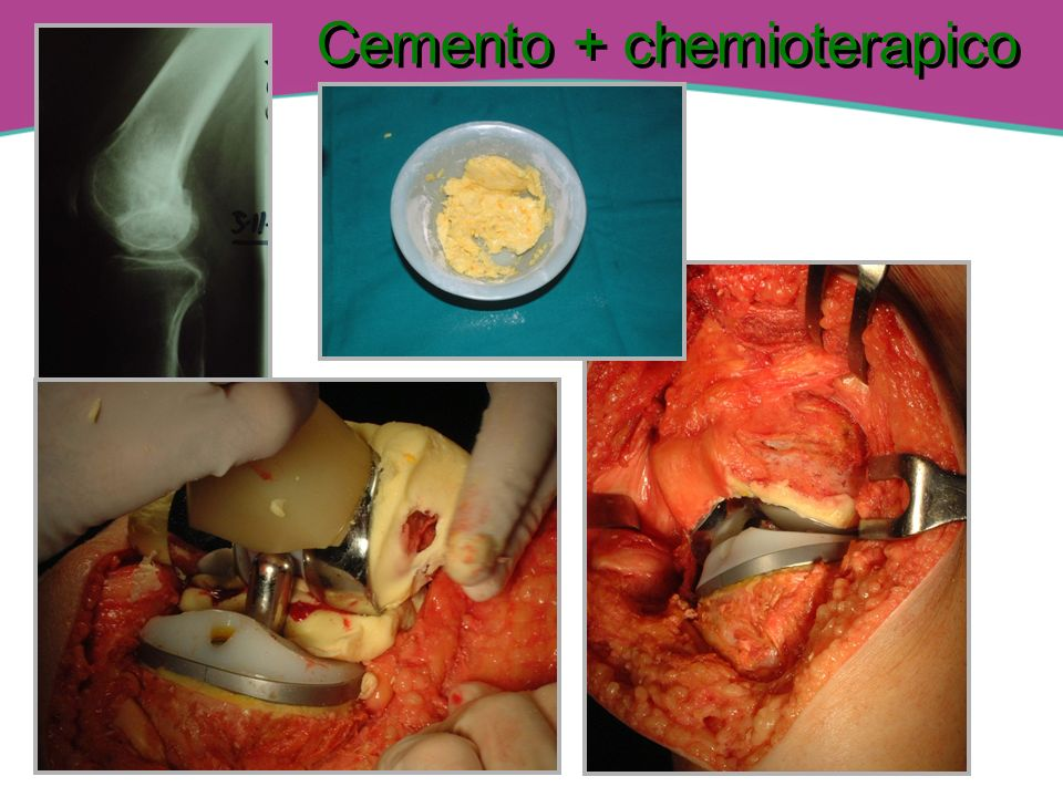 Cemento + chemioterapico