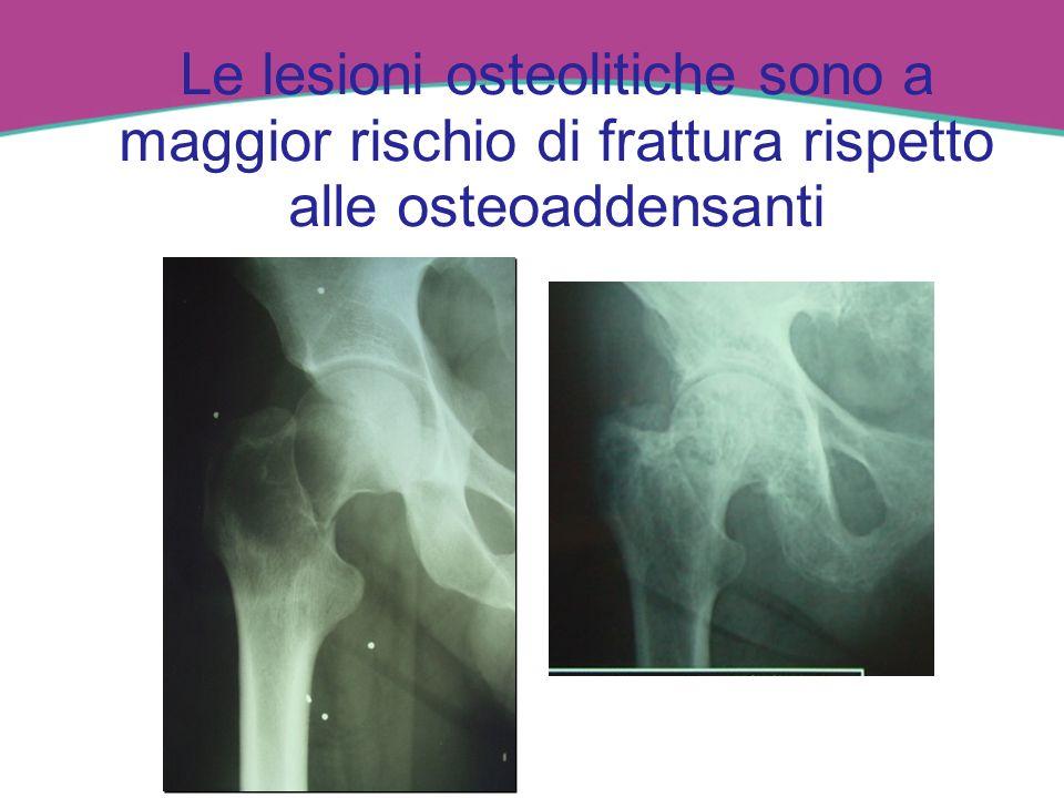 Le lesioni osteolitiche sono a maggior rischio di frattura rispetto alle osteoaddensanti