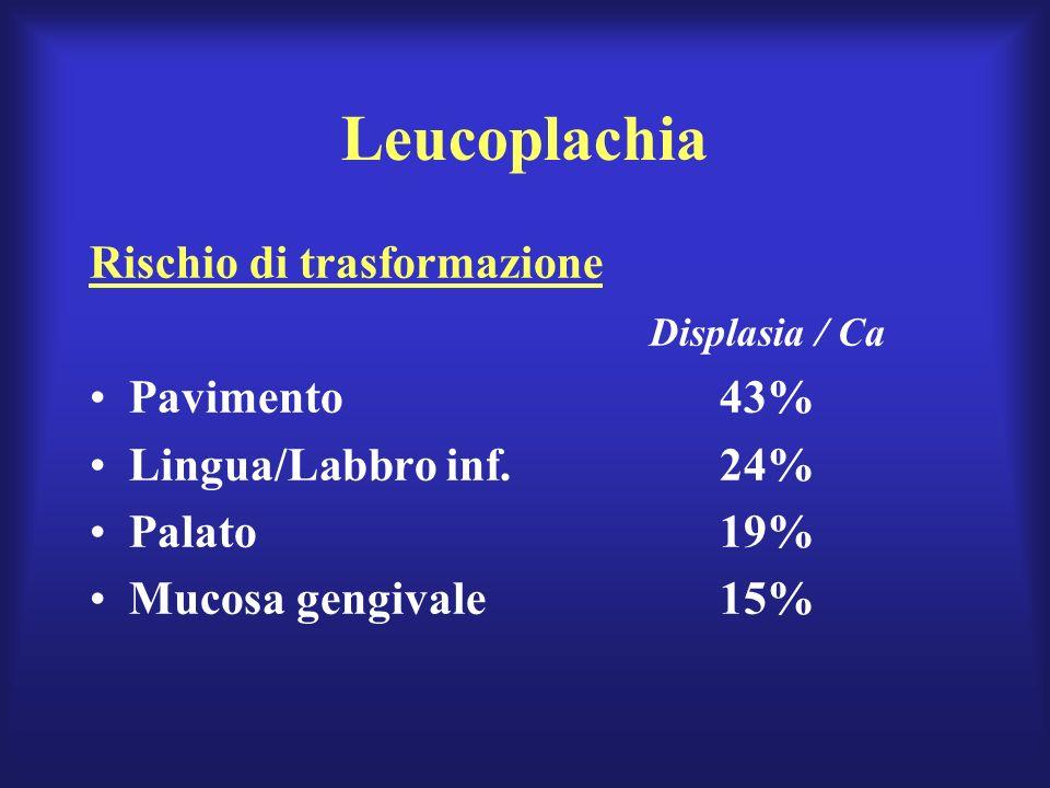 Leucoplachia Rischio di trasformazione Displasia / Ca Pavimento 43%
