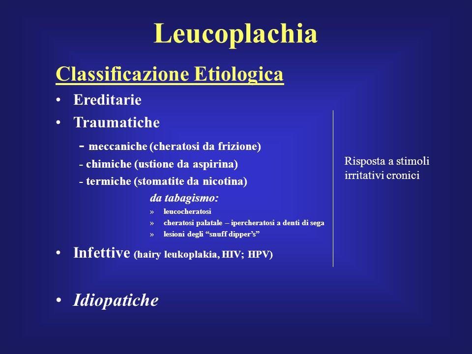 Leucoplachia Classificazione Etiologica Idiopatiche Ereditarie