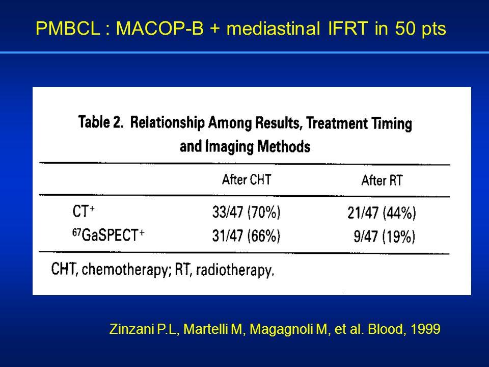 PMBCL : MACOP-B + mediastinal IFRT in 50 pts