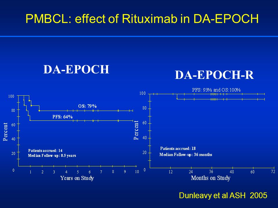 PMBCL: effect of Rituximab in DA-EPOCH