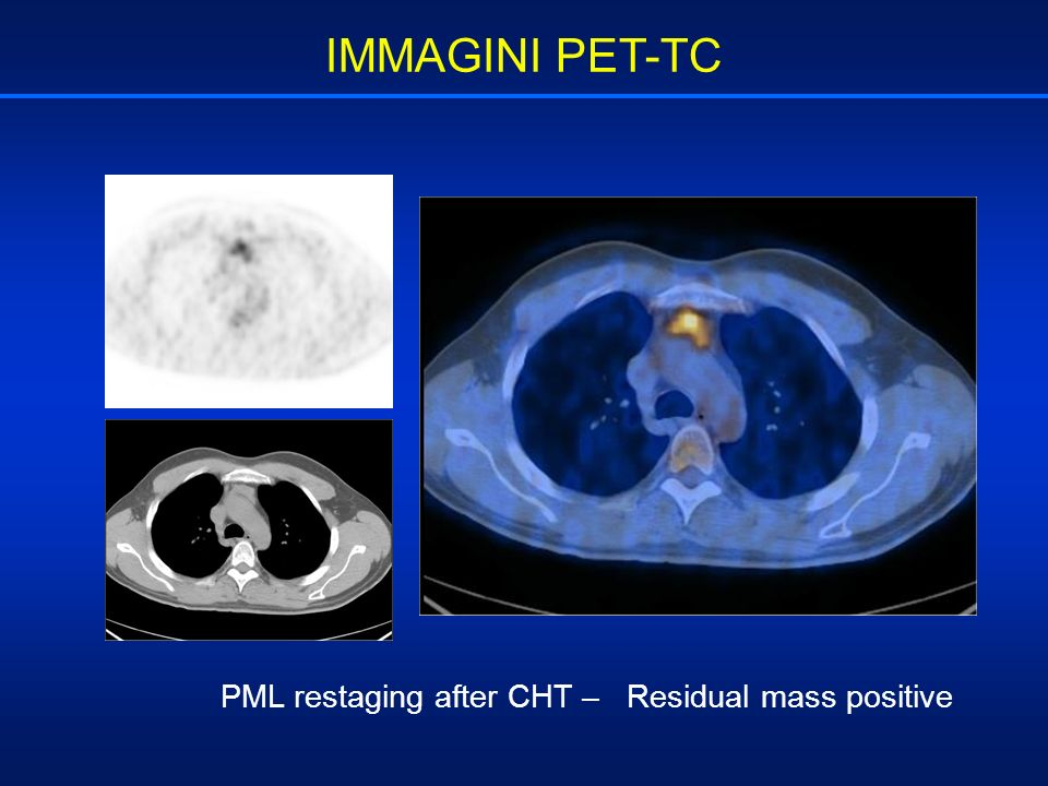IMMAGINI PET-TC PML restaging after CHT – Residual mass positive