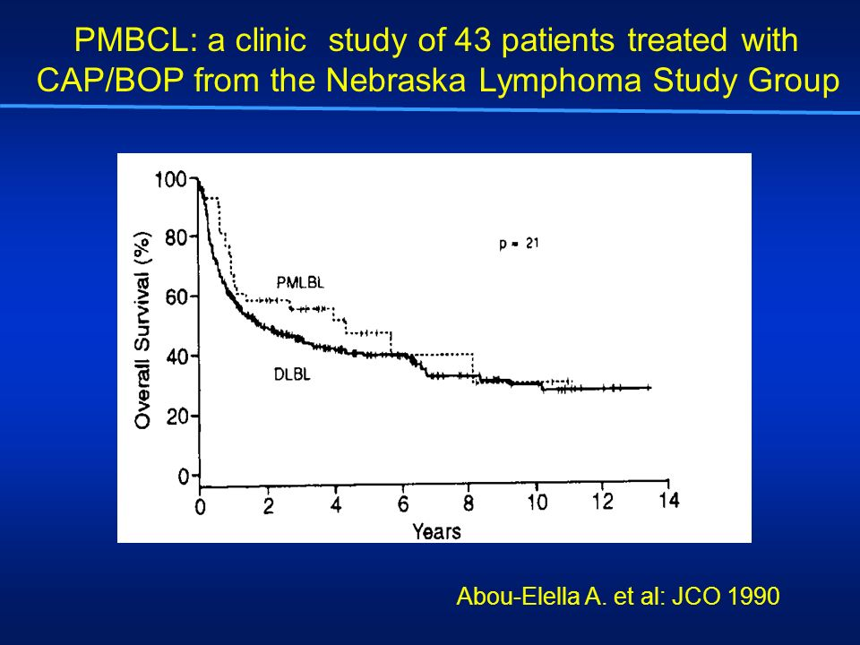 PMBCL: a clinic study of 43 patients treated with