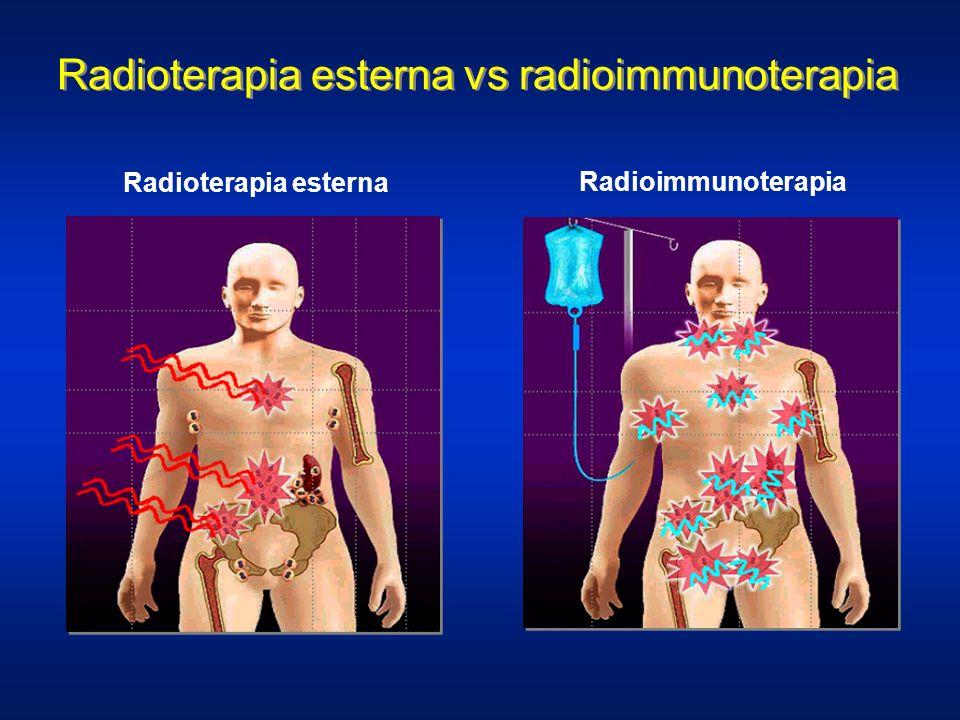Radioterapia esterna vs radioimmunoterapia